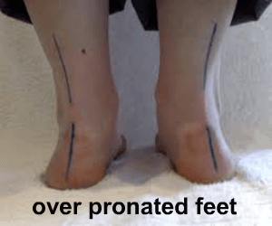 Ellen Mcraven - Blog Ankle Pronation Surgery