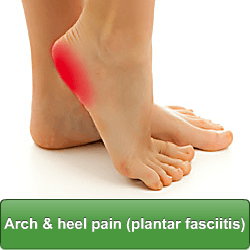 Arch and heel pain