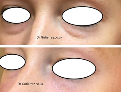 Dermal filler for a tear trough treatment