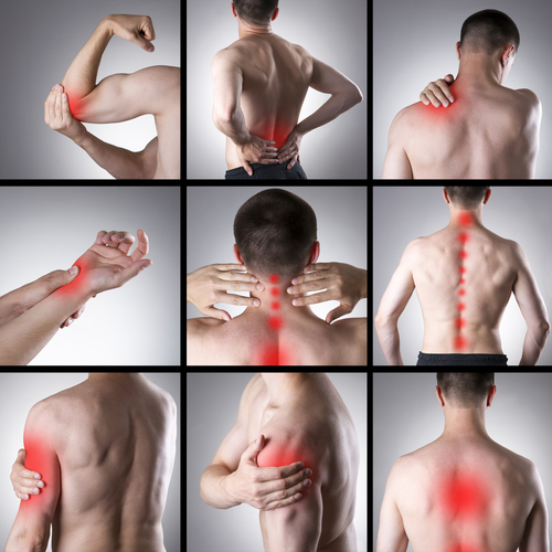 Common areas for soft tissue rheumatism
