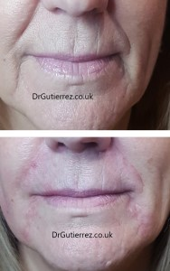 derma filler for naso-labial folds