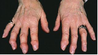 inflammatory joints on a hand associated with osteoarthritis