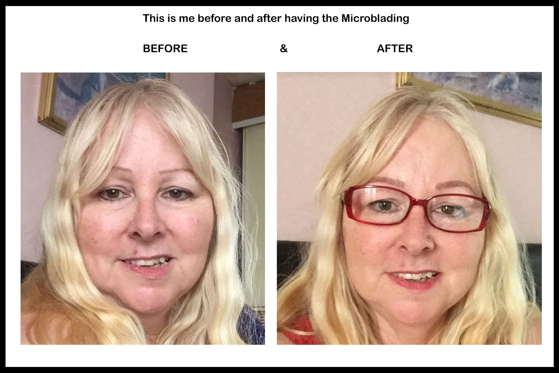 before and after microbladingjpg
