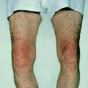 Osteoarthritis in the knees may cause the lower legs to bend inwards