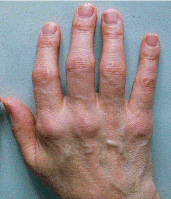 Swollen joints on a hand associated with Inflammatory rheumatic disorders