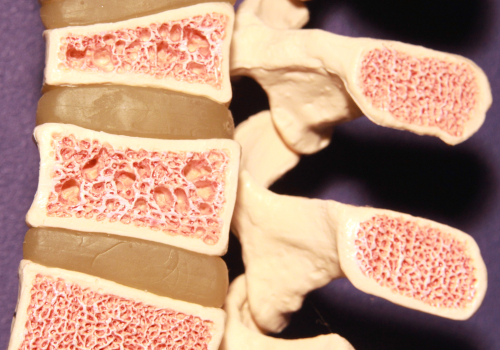 Thinning of the bones in osteoporosis