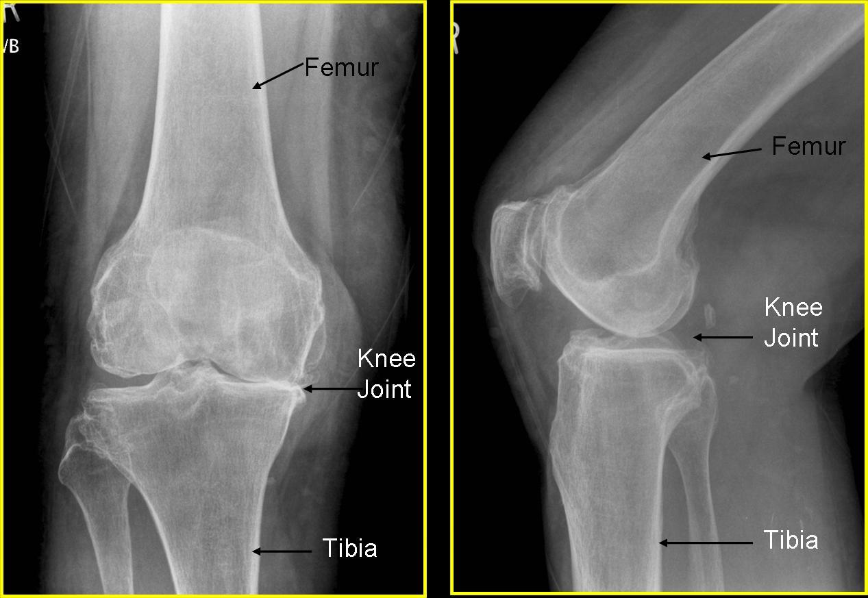 Rheumatoid Arthritis X Ray Knee   www.pixshark.com ...